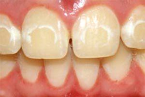 Drill Free Dentistry