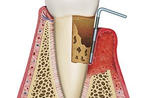 Periodontal (Gum) Therapy